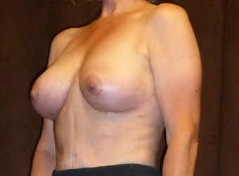 60 Year Old Female Treated for Sagging Breasts after 1518107