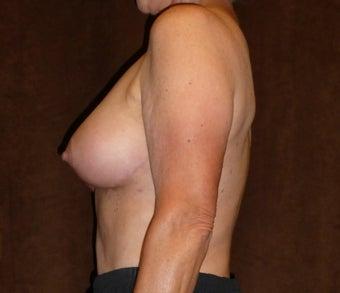 60 Year Old Female Treated for Sagging Breasts 1518107