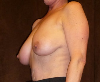 60 Year Old Female Treated for Sagging Breasts before 1518107