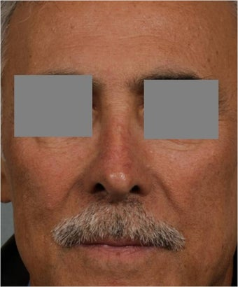 "68 year old male with post rhinoplasty deformity prefers non surgical, ""Injectable Rhinoplasty"" treatment before 821702"