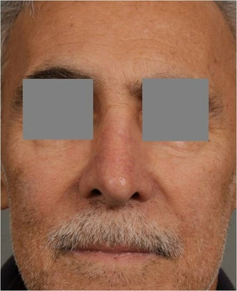 "68 year old male with post rhinoplasty deformity prefers non surgical, ""Injectable Rhinoplasty"" treatment after 821702"