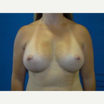 35-44 year old woman treated with Breast Augmentation after 3623125