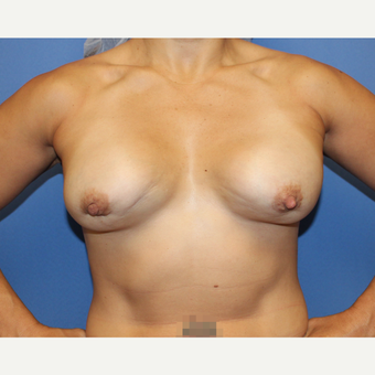 25-34 year old woman treated with Breast Implant Revision before 3696316