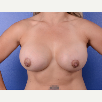 25-34 year old woman treated with Breast Implant Revision after 3696316
