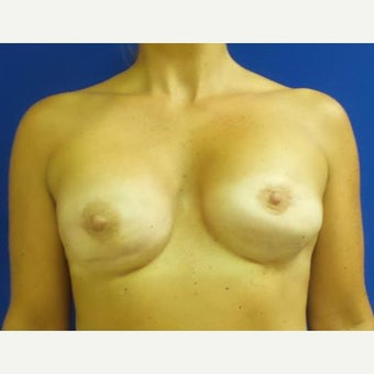 Breast Reconstruction Revision before 2658959