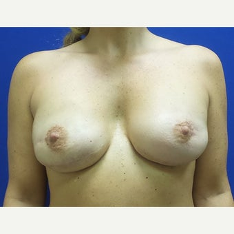 Breast Reconstruction Revision after 2658959