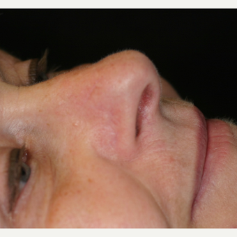 67 year old female Basal Cell Carcinoma on the right nose after 3219729