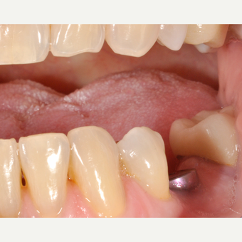 65-74 year old woman treated with Dental Implants before 3254027