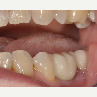 65-74 year old woman treated with Dental Implants after 3254027