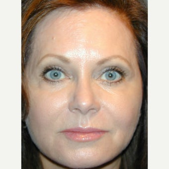 45-54 year old woman treated with Liquid Facelift and Natural appearing Lip Augmentation after 1936141