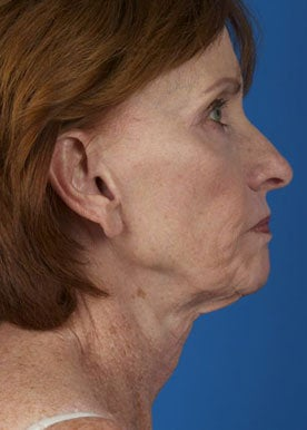 Lower Facelift & Necklift  before 375295