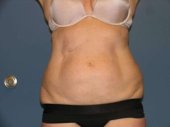 Exilis body after 1034472