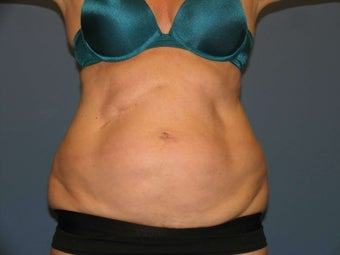 Exilis body before 1034472