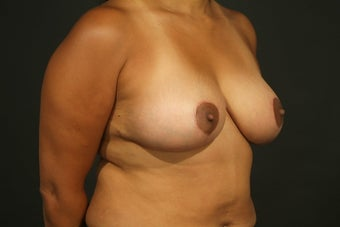 Mastopexy (no augmentation) 37-year-old Mommy Makeover