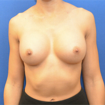 25-34 year old female treated with Breast Augmentation after 3731319