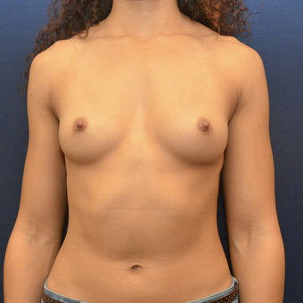 25-34 year old female treated with Breast Augmentation before 3731319