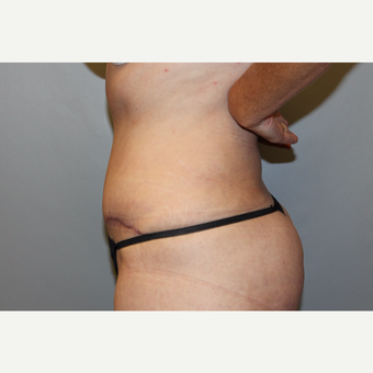 45-54 year old woman treated with Tummy Tuck after 3588254