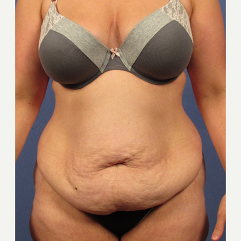 35-44 year old woman treated with Tummy Tuck before 3106712