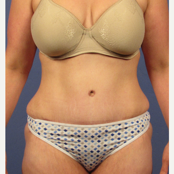 35-44 year old woman treated with Tummy Tuck after 3106712