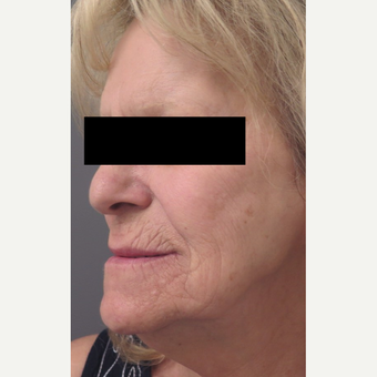 71 year old woman treated with Injectable Fillers for Facial Rejuventation before 3645960