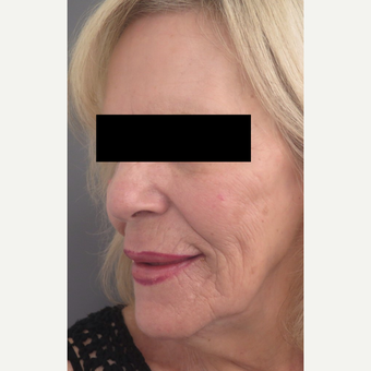 71 year old woman treated with Injectable Fillers for Facial Rejuventation after 3645960