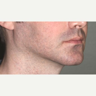 18-24 year old male treated with Chin Surgery (sliding genioplasty) and Jaw Angle Implants after 2352987