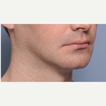 18-24 year old male treated with Chin Surgery (sliding genioplasty) and Jaw Angle Implants before 2352987