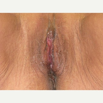 55-64 year old woman treated with Labiaplasty after 2645830