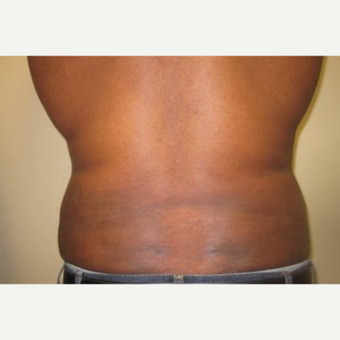 35-44 year old woman treated with Liposuction after 3241125