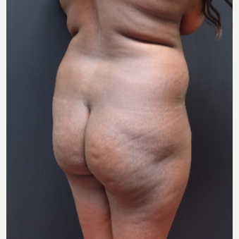 25-34 year old woman treated with Butt Lift before 3363871