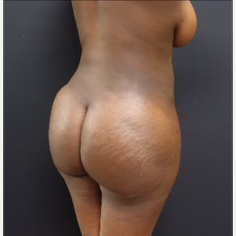 25-34 year old woman treated with Butt Lift after 3363871