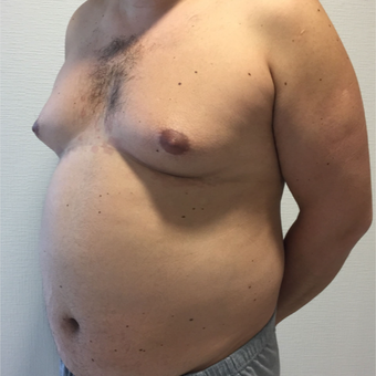 35-44 year old man treated with Vaser Liposuction before 3854230