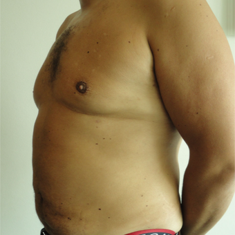 35-44 year old man treated with Vaser Liposuction after 3854230