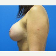 27 year old woman breast augmentation with lift after 3371045