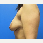 27 year old woman breast augmentation with lift before 3371045