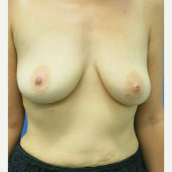 25-34 year old woman treated with Breast Lift with Implants before 1882592