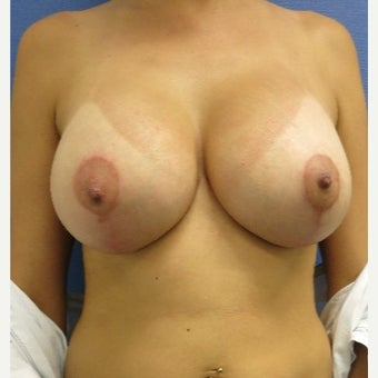 25-34 year old woman treated with Breast Lift with Implants after 1882592