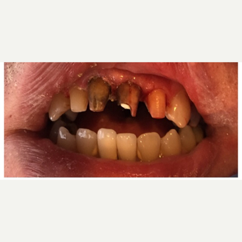 45-54 year old man treated with Porcelain Veneers before 3456903