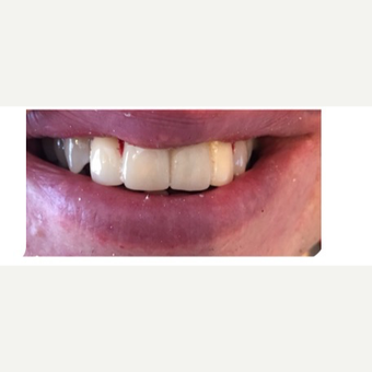 45-54 year old man treated with Porcelain Veneers after 3456903
