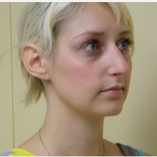 18-24 year old woman treated with Rhinoplasty before 3371742