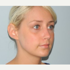 18-24 year old woman treated with Rhinoplasty after 3371742