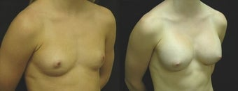 20 year old woman treated with Breast Augmentation before 2990288