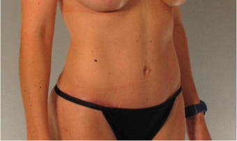 35-44 year old woman treated with Tummy Tuck after 2402657