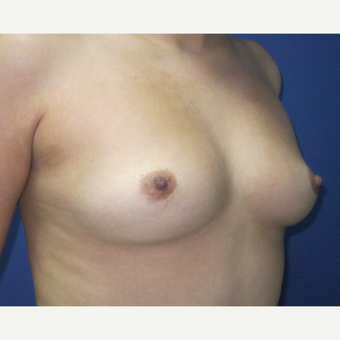 25-34 year old woman treated with Breast Augmentation before 3690989