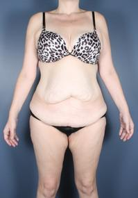 After Weight Loss, Tummy Tuck before 1394249