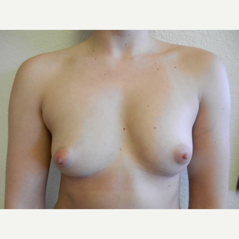 18-24 year old woman treated with Breast Augmentation before 3412640
