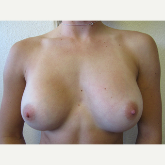 18-24 year old woman treated with Breast Augmentation after 3412640