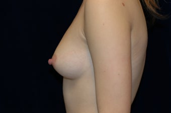 Breast Augmentation 336363
