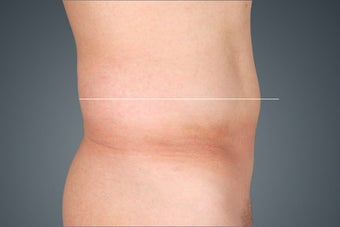 Non Surgical Fat Reduction after 476123
