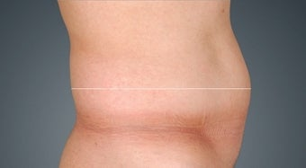Non Surgical Fat Reduction before 476123